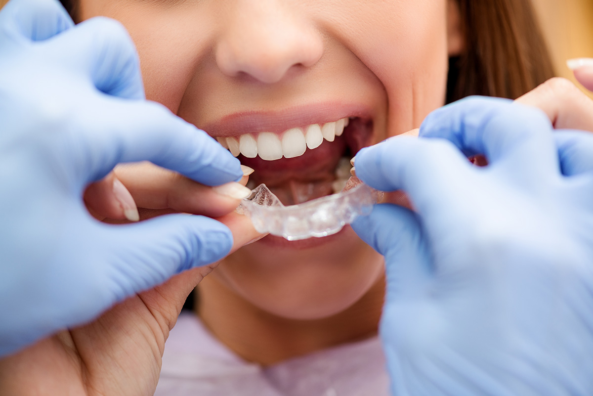 Things to do before choosing a dental clinic